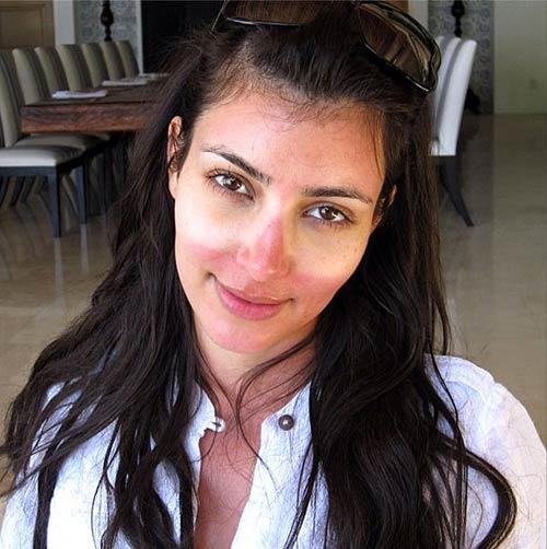 Phát hoảng với da mụn sần sùi của mỹ nữ - 2
