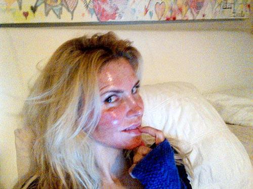 Phát hoảng với da mụn sần sùi của mỹ nữ - 4