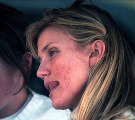 Phát hoảng với da mụn sần sùi của mỹ nữ - 9