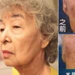 Sức khỏe đời sống - Cụ già Việt đi phẫu thuật thẩm mỹ trước khi chết