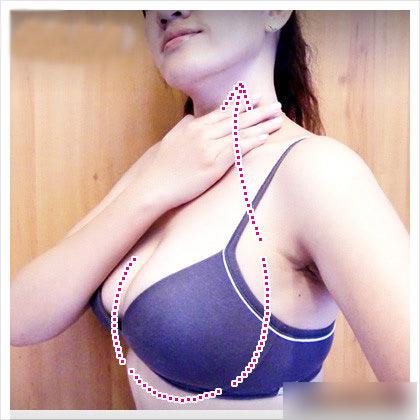 Tôi tự làm nở ngực từ bí quyết của chị họ - 5