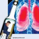 Sức khỏe đời sống - Viêm phổi do... rượu