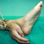 Phi thường - kỳ quặc - Bàn tay dính liền mắt cá chân