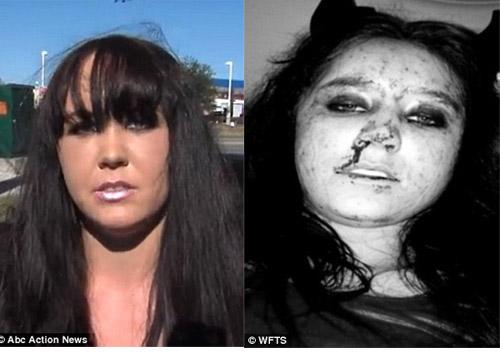"""Cô gái bị đánh gãy mũi vì từ chối """"yêu"""" - 1"""