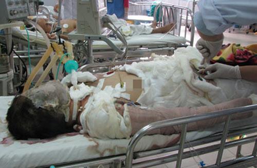 Vụ thiếu nữ bị thiêu sống: Tận cùng nỗi đau - 1
