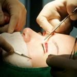 """Sức khỏe đời sống - Phẫu thuật thẩm mỹ: """"Cơn ác mộng"""" ở Hàn Quốc"""