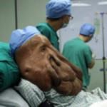 Sức khỏe đời sống - Người đàn ông có khối u nặng 17,5 kg trên mặt