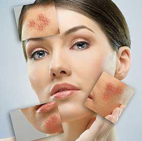 Cách trị liệu cho làn da có dấu hiệu mụn trứng cá đỏ - 1