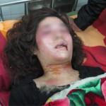 An ninh Xã hội - Đang ngủ, thiếu nữ bị truy sát dã man