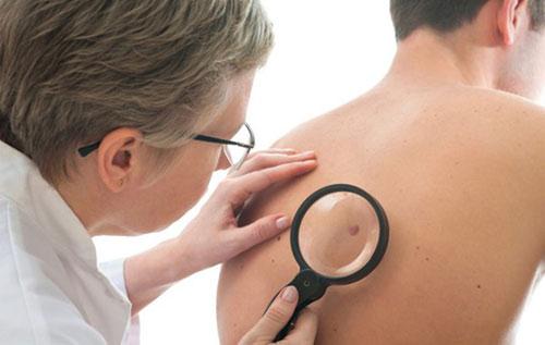 Những dấu hiệu sớm của bệnh ung thư da - 2