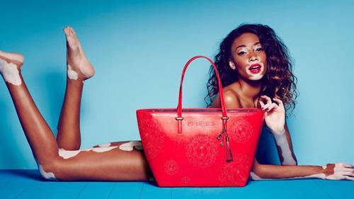 6 người mẫu độc, lạ định nghĩa lại khái niệm cái đẹp - 1