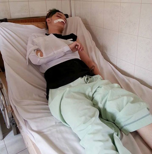 Thiều Bảo Trang bị cướp iPhone 6 ngay hiên nhà - 2