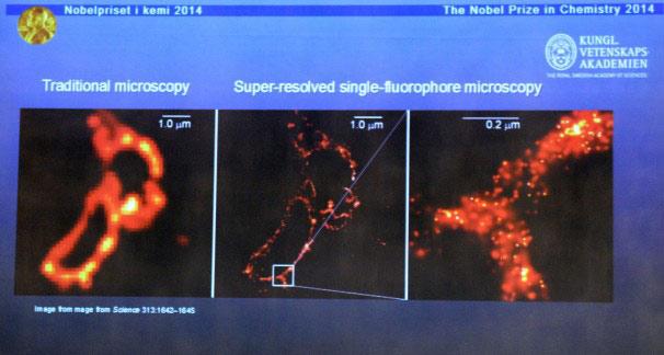 Giải Nobel Hóa học 2014 cho kính hiển vi siêu nét - 2