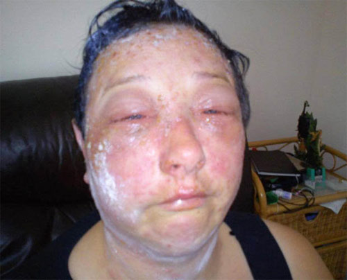 Khuôn mặt biến dạng rùng rợn sau khi nhuộm tóc - 2