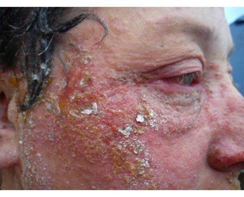 Khuôn mặt biến dạng rùng rợn sau khi nhuộm tóc - 3