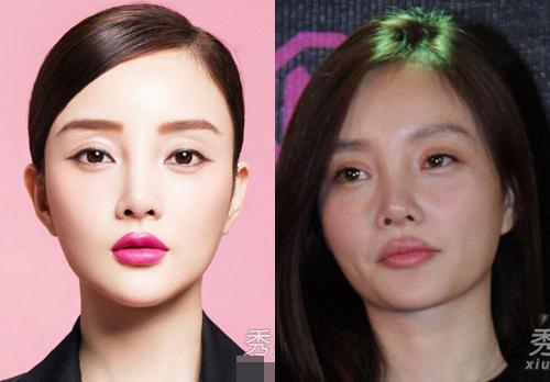 Người đẹp Trung Quốc hỏng mặt vì ham thẩm mỹ - 9