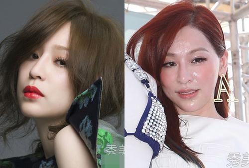 Người đẹp Trung Quốc hỏng mặt vì ham thẩm mỹ - 10