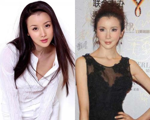 Người đẹp Trung Quốc hỏng mặt vì ham thẩm mỹ - 8