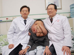 """Phẫu thuật cho người đàn ông """"mặt voi"""""""