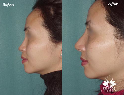 Sở hữu chiếc mũi cao S-line thanh tú giúp bạn tự tin và