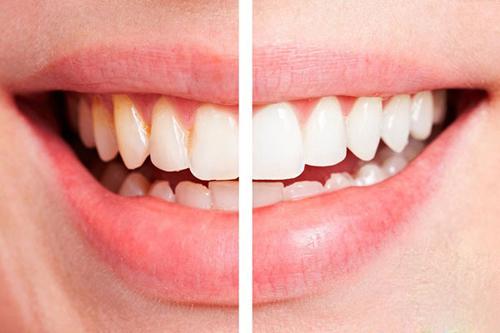 6 mẹo thiên nhiên giúp hàm răng trắng như ngọc - 1