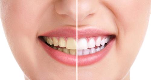 Cấp cứu hàm răng ngày càng ố vàng xấu xí - 1
