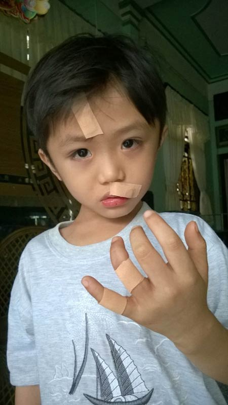 Cà Mau: Chai Fanta bất ngờ phát nổ, bé 6 tuổi phải khâu nhiều mũi - 1