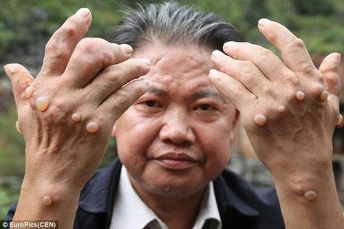 Dân làng Trung Quốc nhiễm bệnh lạ không thuốc chữa - 2