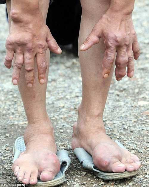 Dân làng Trung Quốc nhiễm bệnh lạ không thuốc chữa - 3