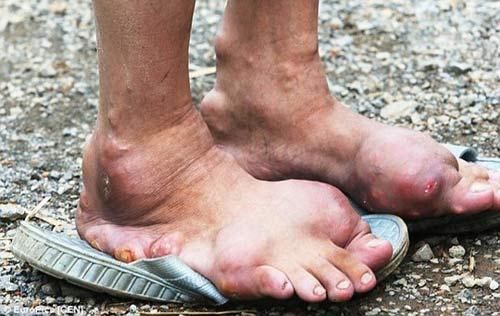 Dân làng Trung Quốc nhiễm bệnh lạ không thuốc chữa - 5