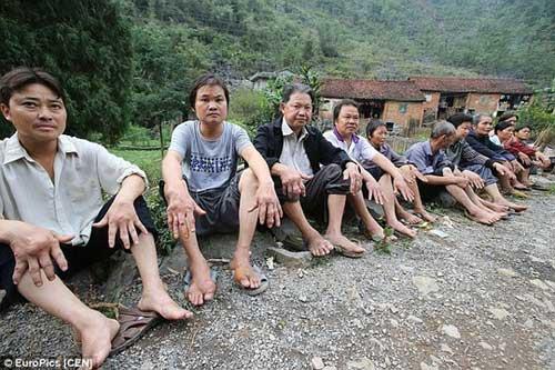 Dân làng Trung Quốc nhiễm bệnh lạ không thuốc chữa - 4
