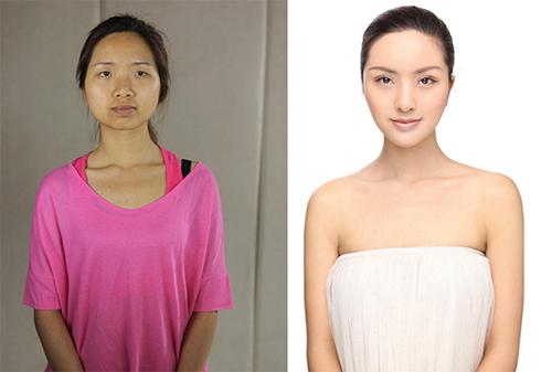 19 phụ nữ Trung Quốc trẻ, đẹp ngỡ ngàng nhờ thẩm mỹ - 1