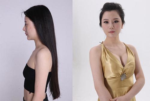 19 phụ nữ Trung Quốc trẻ, đẹp ngỡ ngàng nhờ thẩm mỹ - 11