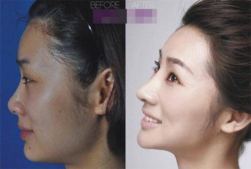 19 phụ nữ Trung Quốc trẻ, đẹp ngỡ ngàng nhờ thẩm mỹ - 12