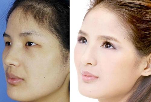 19 phụ nữ Trung Quốc trẻ, đẹp ngỡ ngàng nhờ thẩm mỹ - 13
