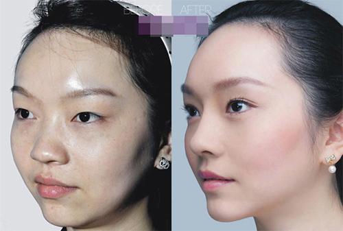 19 phụ nữ Trung Quốc trẻ, đẹp ngỡ ngàng nhờ thẩm mỹ - 14