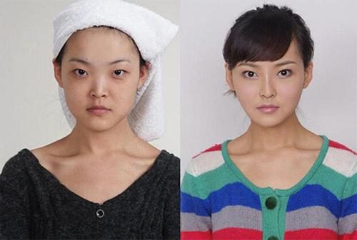 19 phụ nữ Trung Quốc trẻ, đẹp ngỡ ngàng nhờ thẩm mỹ - 15