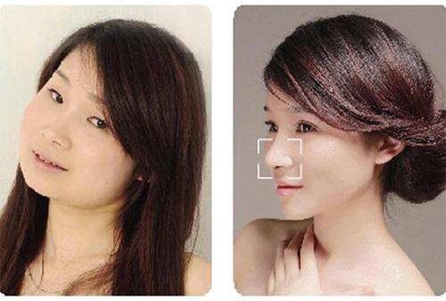 19 phụ nữ Trung Quốc trẻ, đẹp ngỡ ngàng nhờ thẩm mỹ - 16