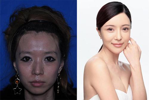 19 phụ nữ Trung Quốc trẻ, đẹp ngỡ ngàng nhờ thẩm mỹ - 2
