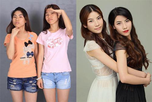 19 phụ nữ Trung Quốc trẻ, đẹp ngỡ ngàng nhờ thẩm mỹ - 3