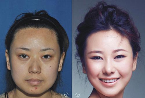 19 phụ nữ Trung Quốc trẻ, đẹp ngỡ ngàng nhờ thẩm mỹ - 5