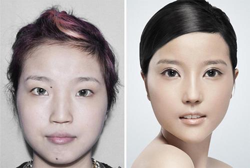 19 phụ nữ Trung Quốc trẻ, đẹp ngỡ ngàng nhờ thẩm mỹ - 6