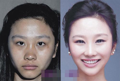19 phụ nữ Trung Quốc trẻ, đẹp ngỡ ngàng nhờ thẩm mỹ - 7