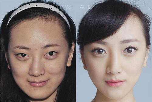 19 phụ nữ Trung Quốc trẻ, đẹp ngỡ ngàng nhờ thẩm mỹ - 8