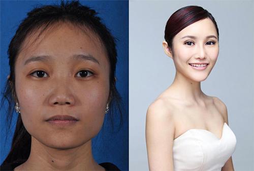 19 phụ nữ Trung Quốc trẻ, đẹp ngỡ ngàng nhờ thẩm mỹ - 10