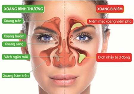 Mẹo xử lý khi bị tắc nghẹt mũi - 2