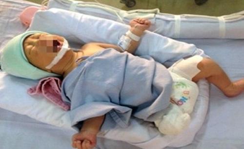 Bộ trưởng Bộ Y tế khen bác sỹ cứu bé sơ sinh văng khỏi bụng mẹ - 1