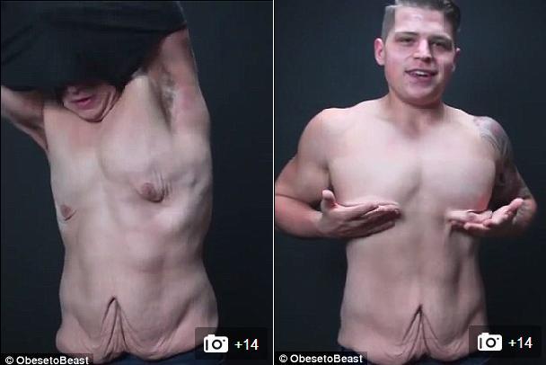 """Hết hồn vì cơ thể """"chảy nhão"""" sau khi giảm 73kg - 11"""