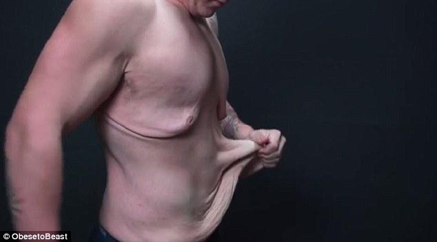"""Hết hồn vì cơ thể """"chảy nhão"""" sau khi giảm 73kg - 6"""