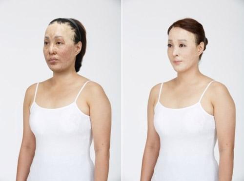 2 bà mẹ có gương mặt bị hủy hoại tìm lại nhan sắc - 4